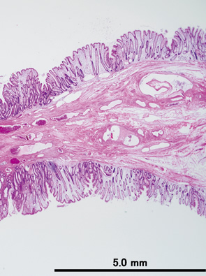 Colonic muco-submucosal elongated polyp