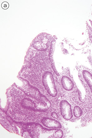 Ulcerative colitis(UC), indefinite for neoplasia(biopsy)-2 a
