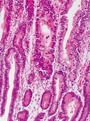 basal cell type neoplasia